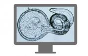 Vetoquinol webinar parazitologie